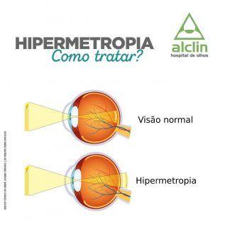 A Hipermetropia ocorre quando o olho é menor que o normal. Isso cria uma condição de...